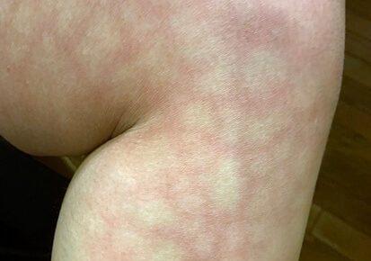 足が赤い網目状になった原因