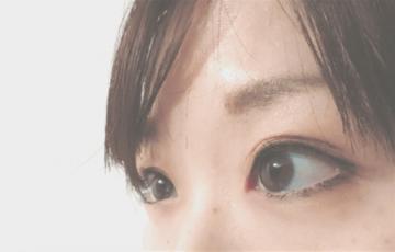 逆さまつげの手術をした目